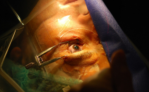 LASIK Augenlasern